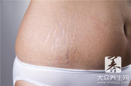 产后妊娠纹怎么消除